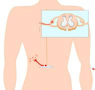 Gürtelrose Anzeichen