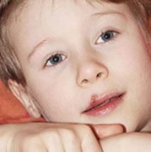 Herpes bei Kindern - Anzeichen, Symptome, Behandlung