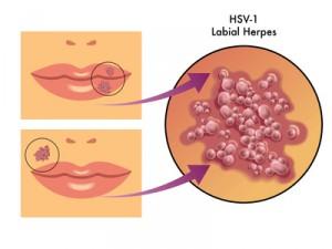 herpes labiales - Lippenherpes