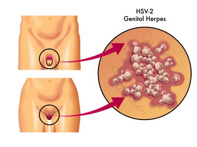 herpes genitale