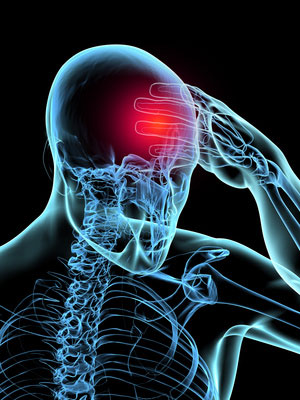 nervenentzündung