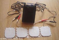 transkutane elektrische Nervenstimulation