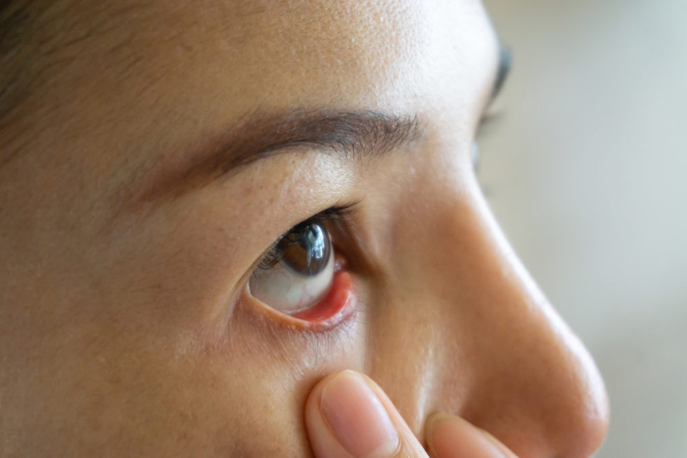 Komplikationen am Auge,